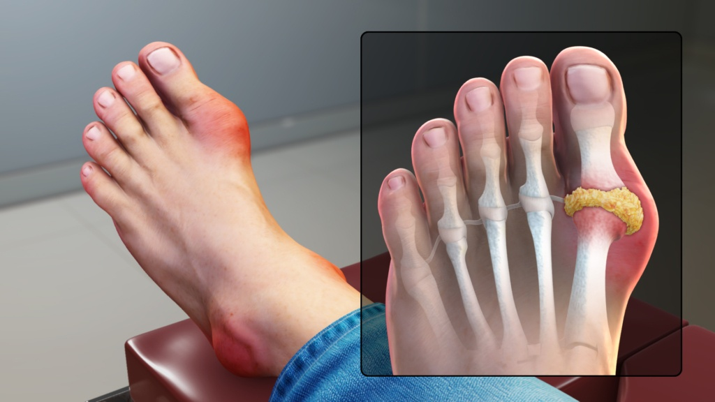 does cbd oil work for gout